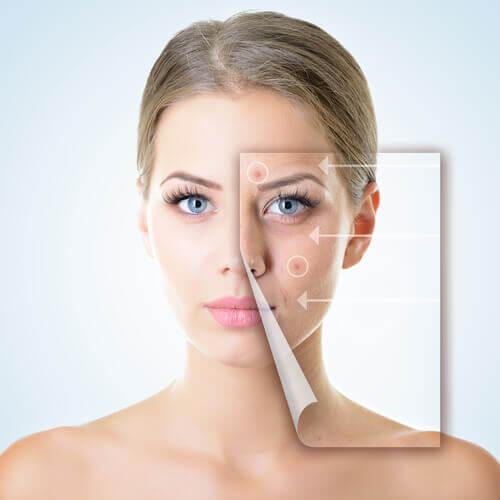 Mulher com problemas na pele por causa de um sistema digestivo debilitado
