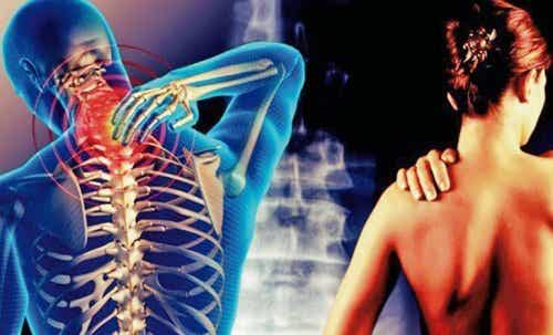 Cervicobraquialgia: a dor que vai do pescoço ao braço