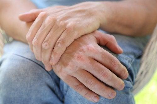 É possível curar o vitiligo com remédios caseiros?
