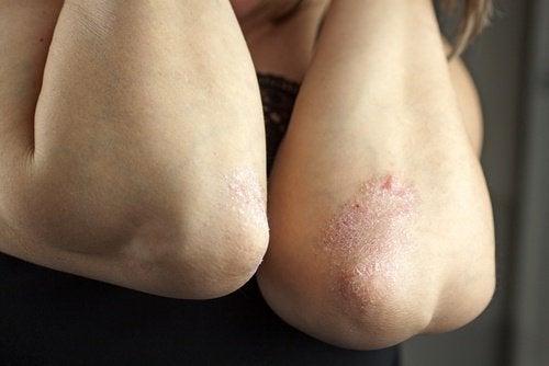 Problema de pele