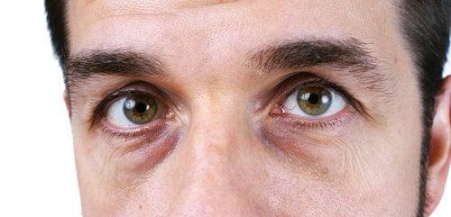 4 soluções naturais para acabar com as olheiras