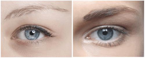 Como resolver naturalmente o problema das sobrancelhas escassas?