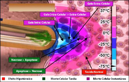 crioablacao_infografico