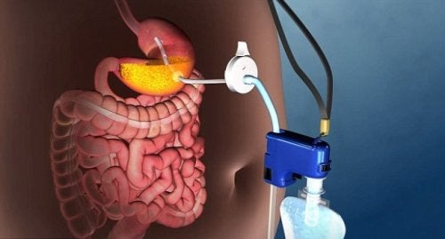 Descubra esta nova técnica para tratar a obesidade grave sem cirurgia