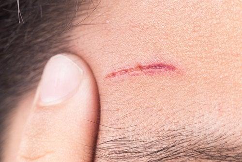 Cicatriz na testa