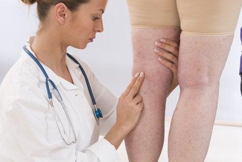 Pernas inchadas por retenção de líquidos