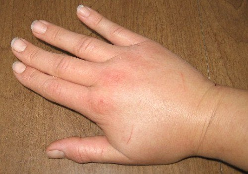 O inchaço nas mãos é sinal de retenção de líquidos