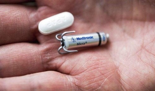 Micra: o menor marca-passo do mundo, implantado sem cirurgia
