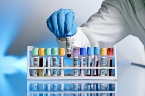 O vírus do HIV foi completamente eliminado do sangue de um paciente britânico