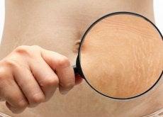 6 truques para melhorar a aparência das suas estrias