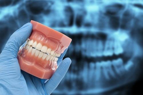 Molde de dentadura com bruxismo
