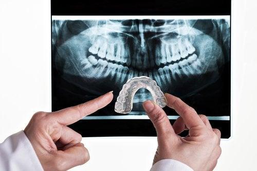 Placa dental para bruxismo