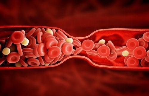 Novo tratamento que reduz o colesterol ruim