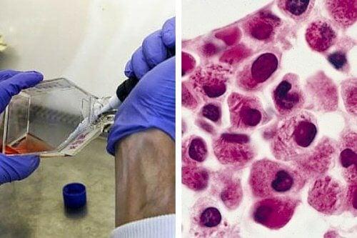 Estudo das células de câncer