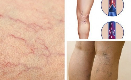 5 mudanças para ter saúde vascular nas pernas