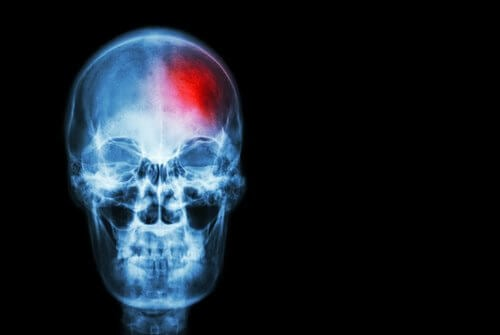 Sinais de alerta de um acidente vascular cerebral