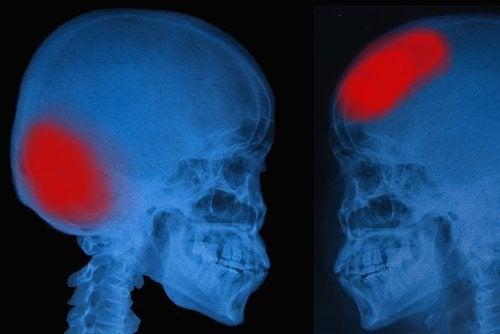 acidente-vascular-cerebral