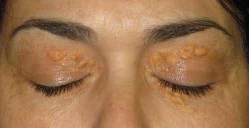 Xantelasma: as manchas brancas ao redor dos olhos