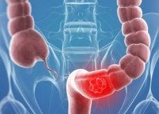 9 remédios naturais que ajudam no tratamento de câncer de cólon