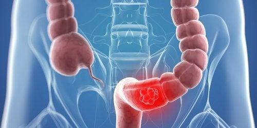 9 remédios naturais que podem ajudar no tratamento de câncer de cólon