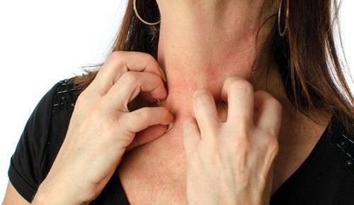 Mulher coçando seu pescoço