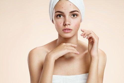 Vick Vaporub contra a acne