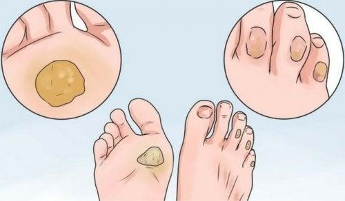 10 remédios para dizer adeus aos calos e bolhas