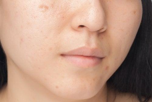 Estes 7 hábitos alimentares estão prejudicando o seu rosto