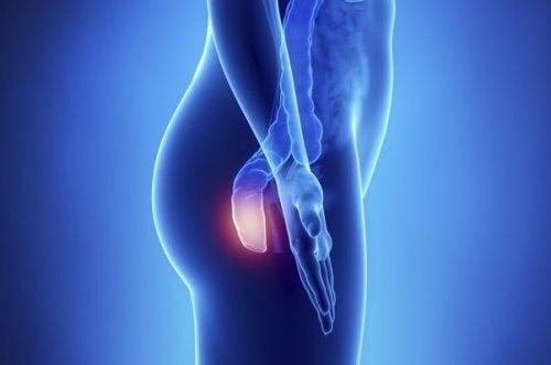 5 sintomas do câncer anal: uma doença silenciosa