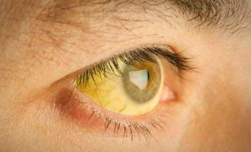 icterícia nos olhos por problemas na vesícula biliar