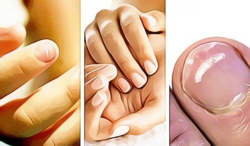 5 sinais emitidos pelas unhas das mãos