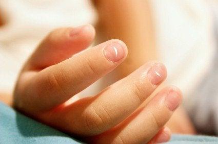 Unhas das mãos com estrias ou bolhas
