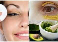 6 dicas naturais para atenuar as olheiras