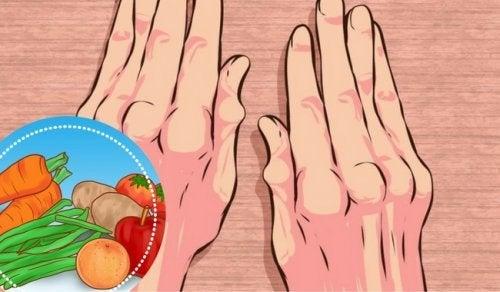 Sofre de artrite? Inclua estes alimentos na dieta