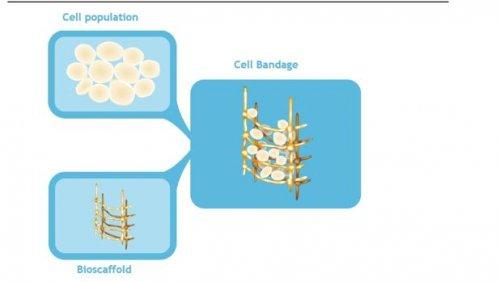 """Meniscos """"reparados"""" com um curativo de células-tronco"""