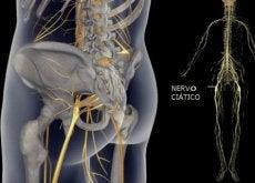 Exercícios simples para aliviar a dor do nervo ciático, das costas e do quadril
