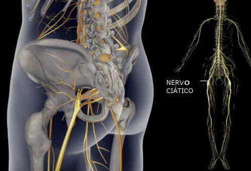 Exercícios simples para aliviar a dor no nervo ciático, das costas e do quadril