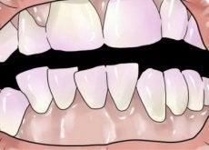 Como eliminar o tártaro dos dentes naturalmente