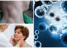 Linfoma, um câncer silencioso que pode ser tratado com êxito se detectado a tempo