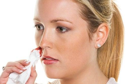 Remédios naturais para combater o sangramento nasal