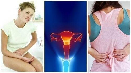 Os 8 principais sintomas para detectar o câncer do colo do útero