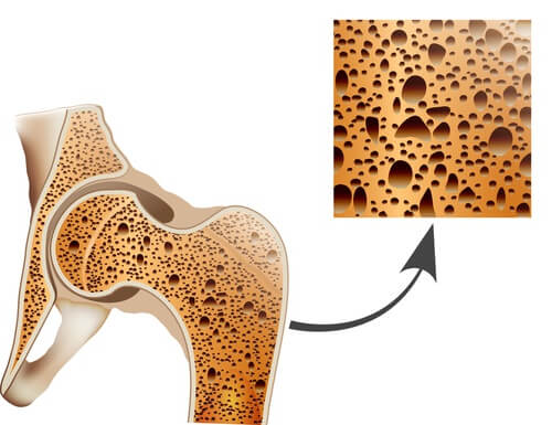 Combata a osteoporose com estes remédios naturais