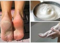 Elimine os fungos e os calos dos pés com este incrível remédio caseiro