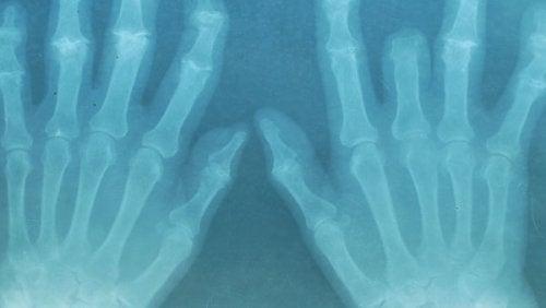 ossos-dores