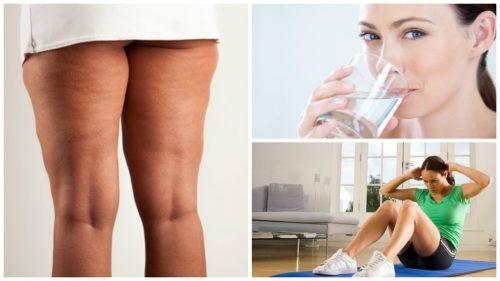 6 coisas que você deve fazer antes de iniciar um tratamento contra a celulite