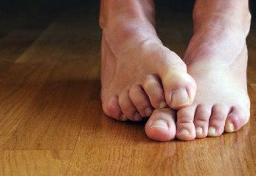 Fungos nas unhas dos pés