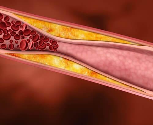 Colesterol em veia não tratada com casca de laranja