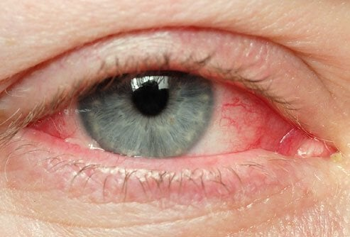 olhos-secos
