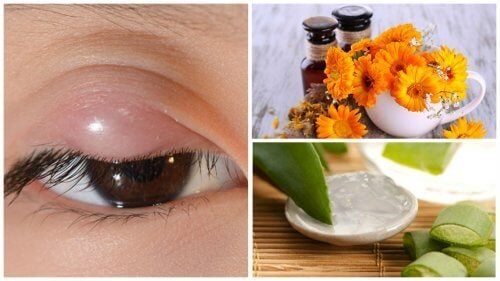 Como aliviar o terçol com estes 7 remédios naturais