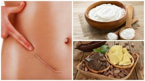 Os 7 melhores remédios para atenuar cicatrizes de forma natural